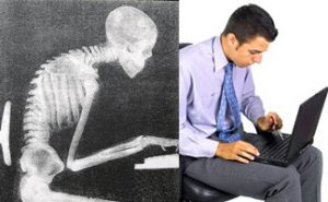 poor posture cause back pain