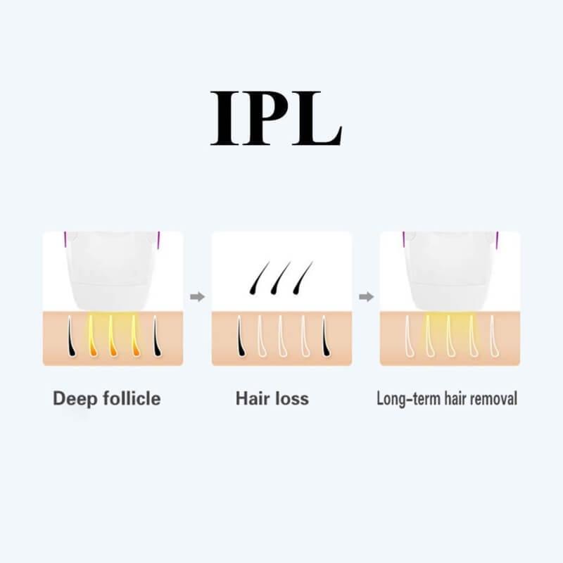 Umate IPL Hair removal laser machine