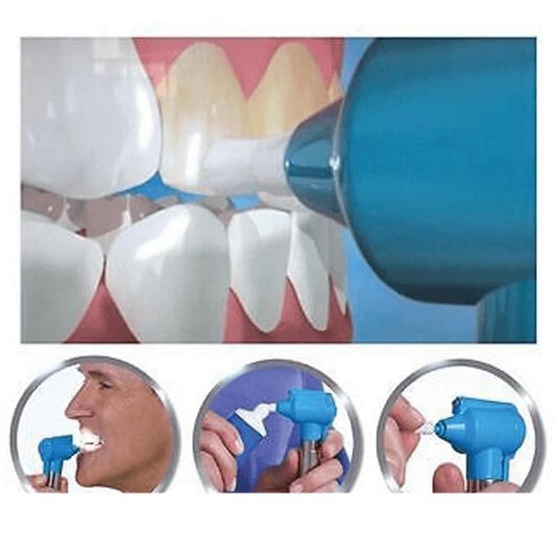 dental-teethwhitener-teeth-stain-remover